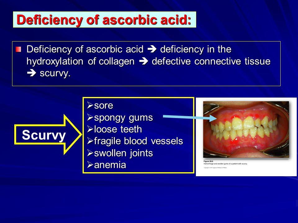 Deficiency of ascorbic acid: