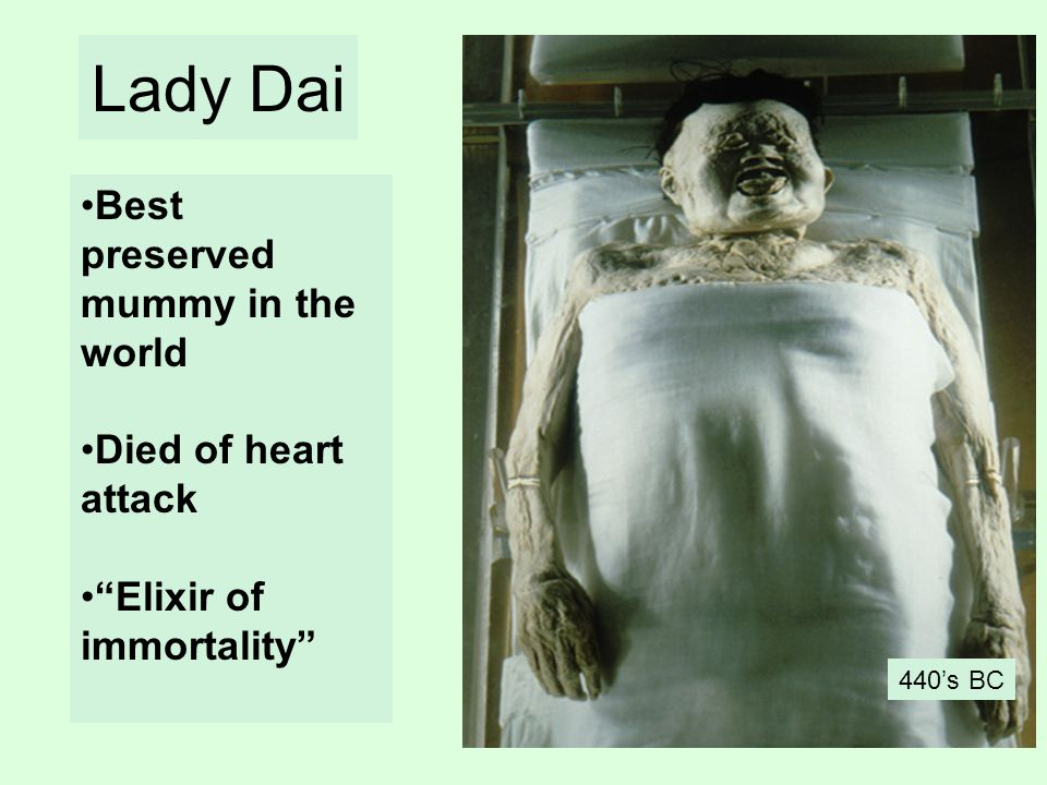 Lady Dai Best preserved mummy in the world Died of heart attack