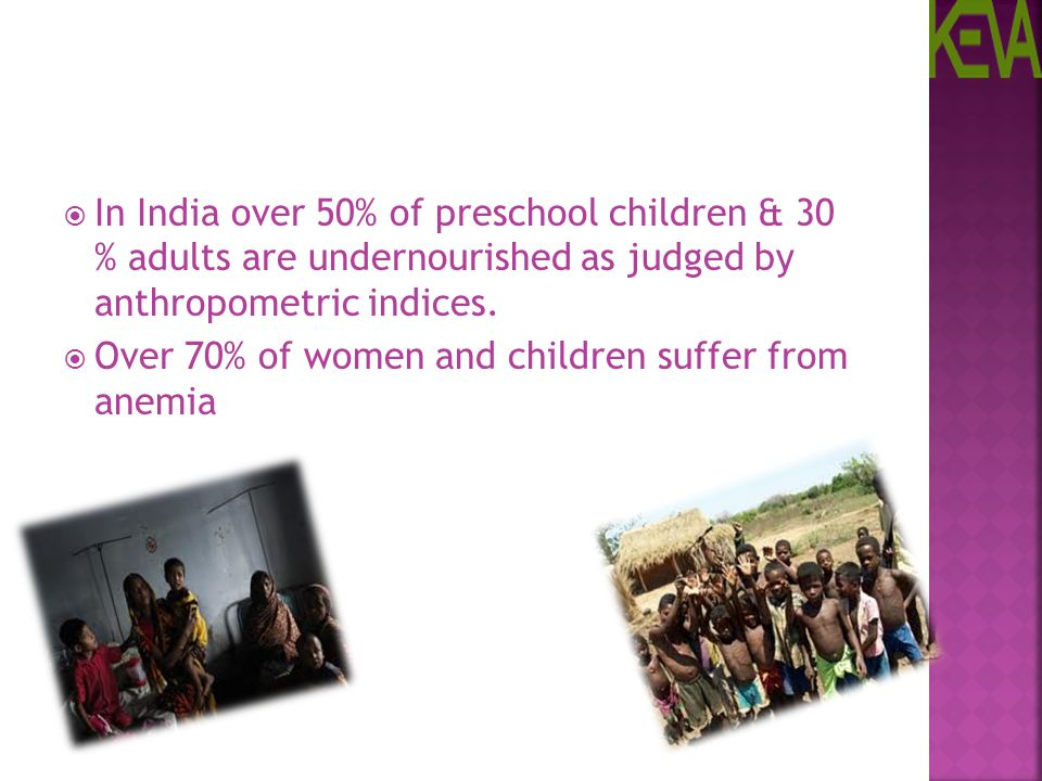 In India over 50% of preschool children & 30 % adults are undernourished as judged by anthropometric indices.