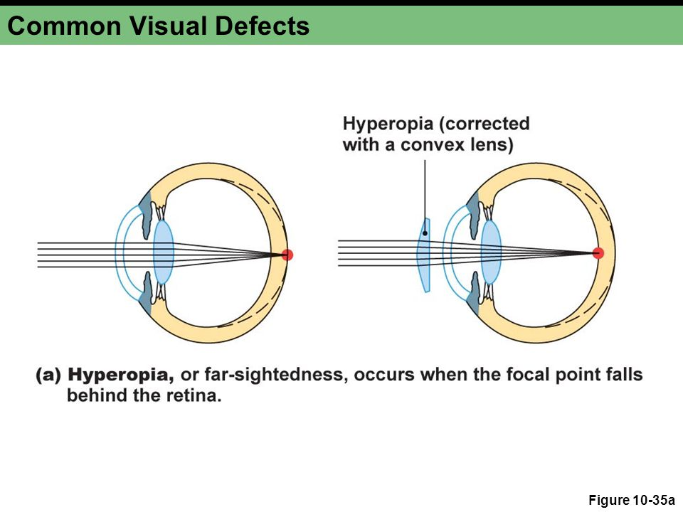 Common Visual Defects Figure 10-35a