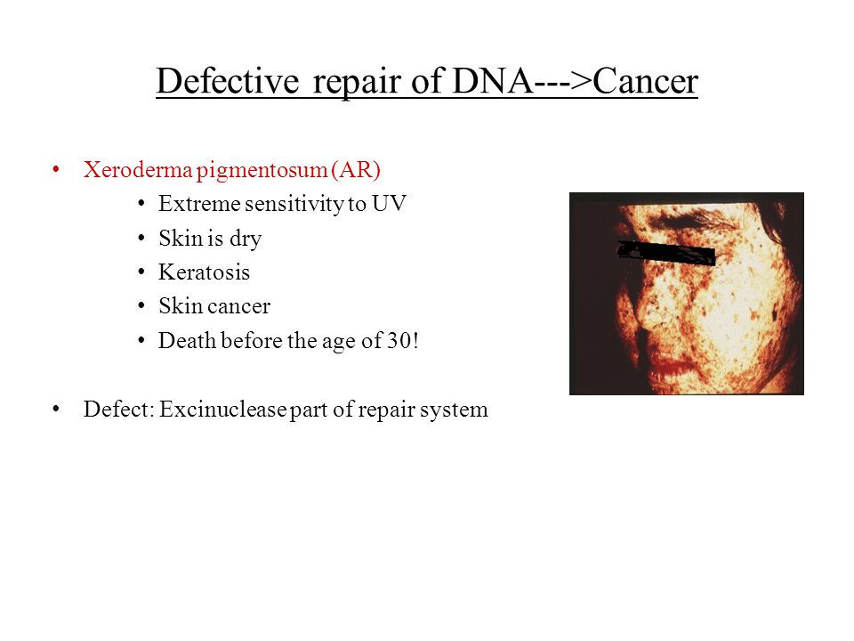 Defective repair of DNA--->Cancer