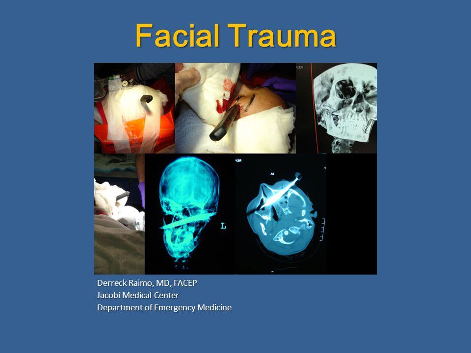 Facial Trauma Derreck Raimo, MD, FACEP Jacobi Medical Center