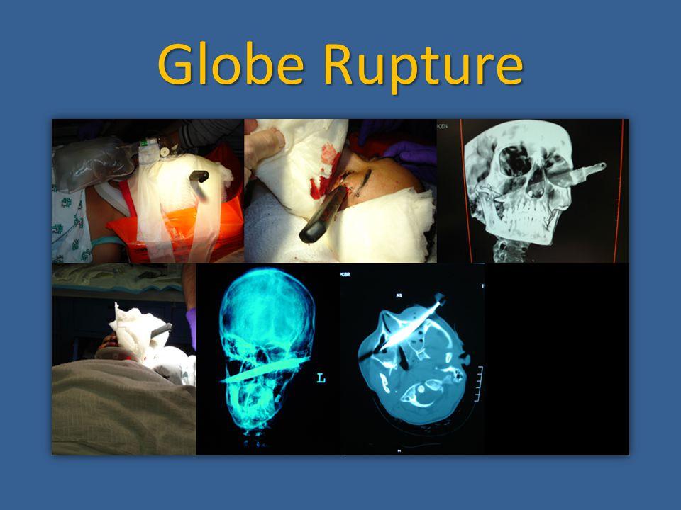 Globe Rupture