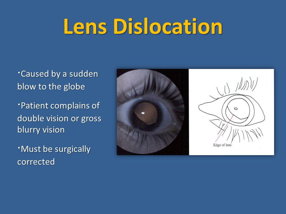 Lens Dislocation ·Caused by a sudden blow to the globe