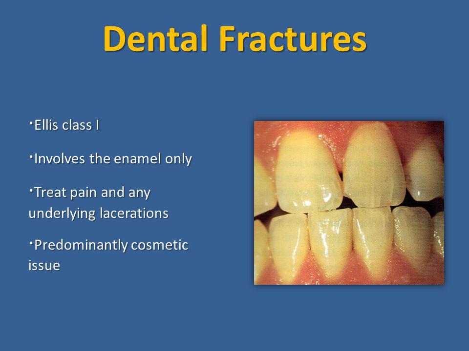 Dental Fractures ·Ellis class I ·Involves the enamel only