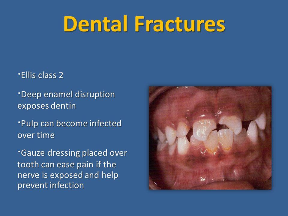 Dental Fractures ·Ellis class 2 ·Deep enamel disruption exposes dentin