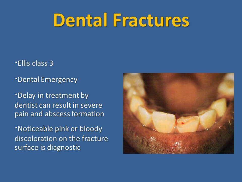 Dental Fractures ·Ellis class 3 ·Dental Emergency