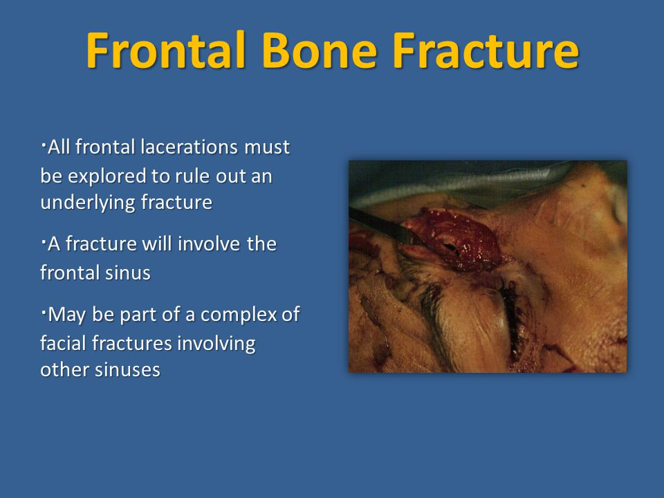Frontal Bone Fracture ·All frontal lacerations must be explored to rule out an underlying fracture.