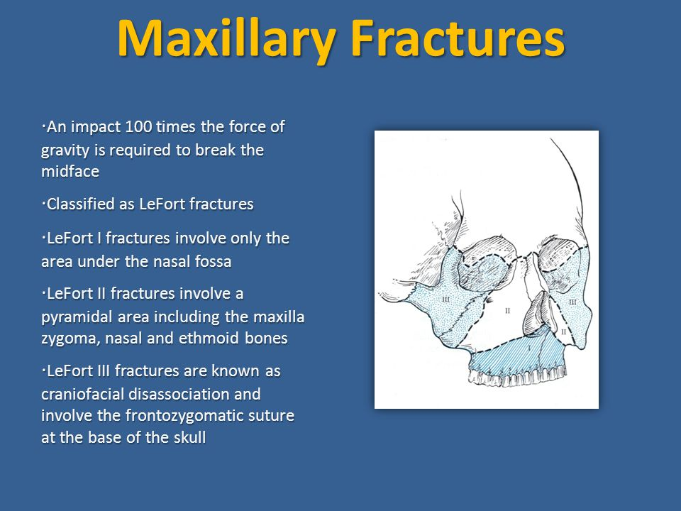 Maxillary Fractures ·An impact 100 times the force of gravity is required to break the midface. ·Classified as LeFort fractures.