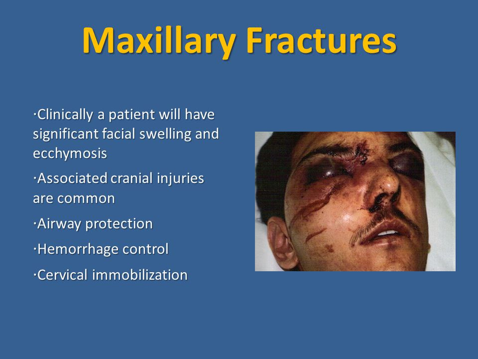 Maxillary Fractures ·Clinically a patient will have significant facial swelling and ecchymosis. ·Associated cranial injuries are common.