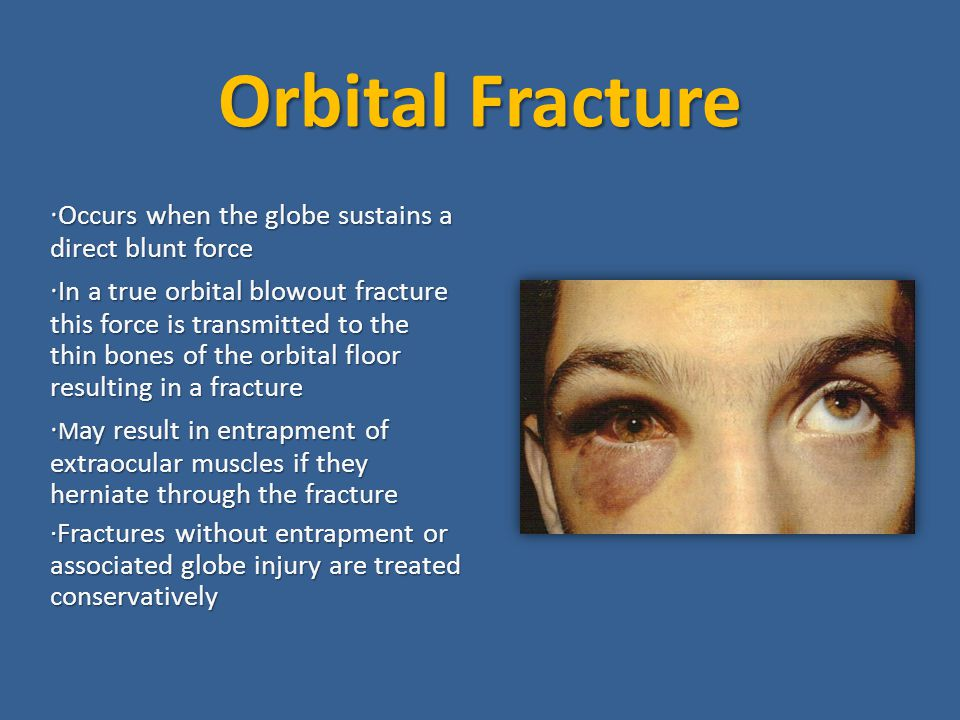 Orbital Fracture ·Occurs when the globe sustains a direct blunt force
