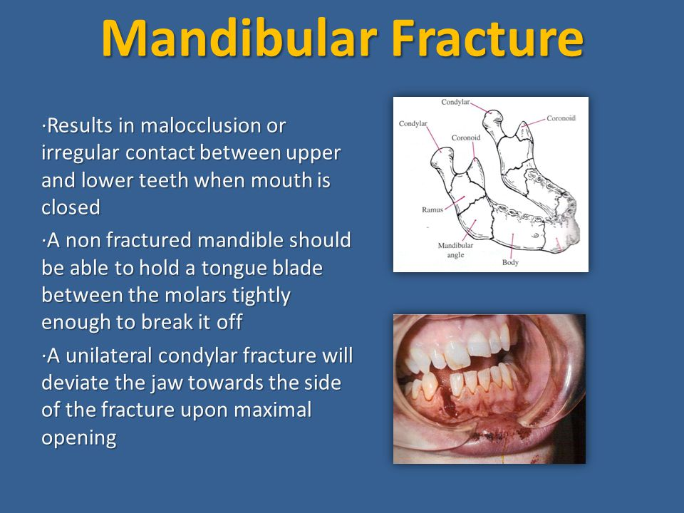 Mandibular Fracture ·Results in malocclusion or irregular contact between upper and lower teeth when mouth is closed.