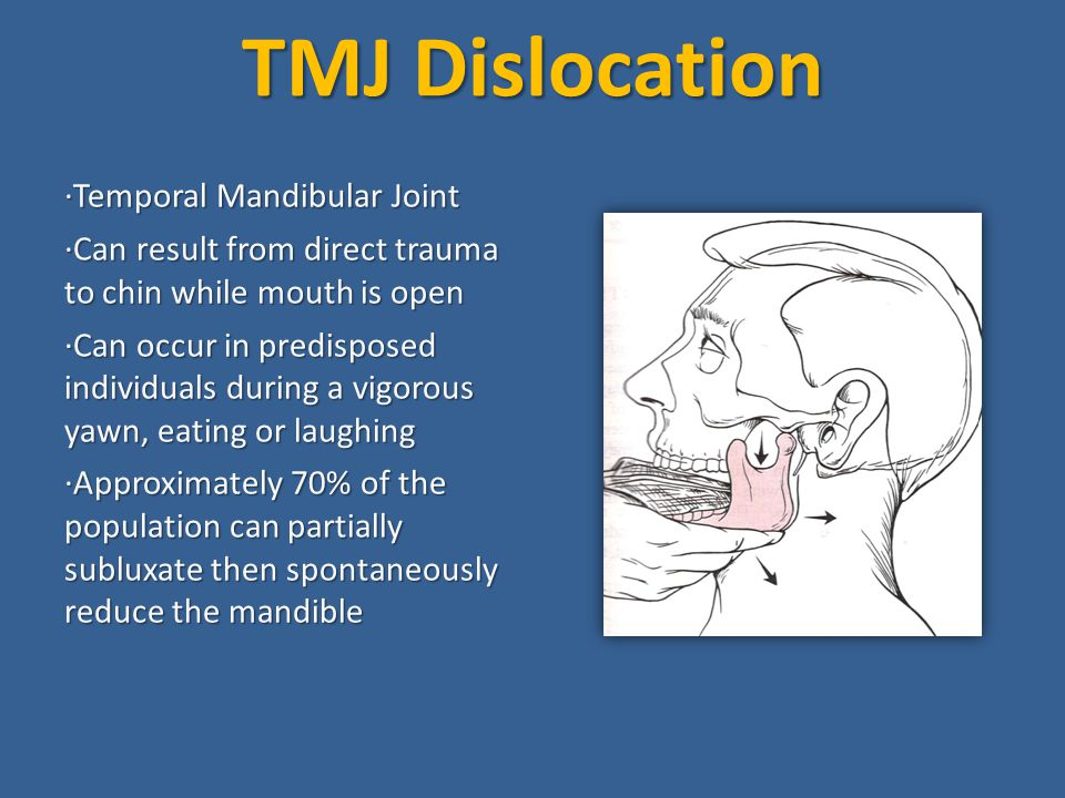 TMJ Dislocation ·Temporal Mandibular Joint