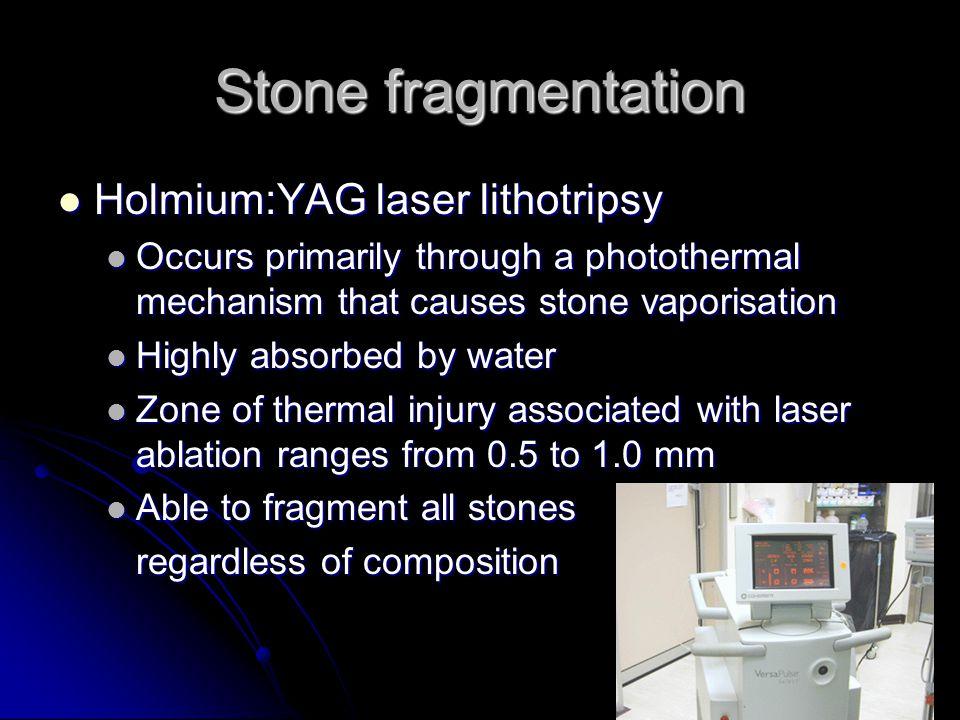 Stone fragmentation Holmium:YAG laser lithotripsy