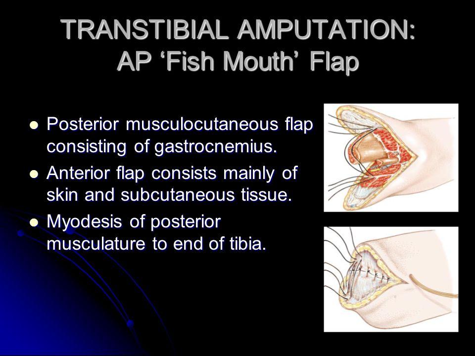 TRANSTIBIAL AMPUTATION: AP 'Fish Mouth' Flap