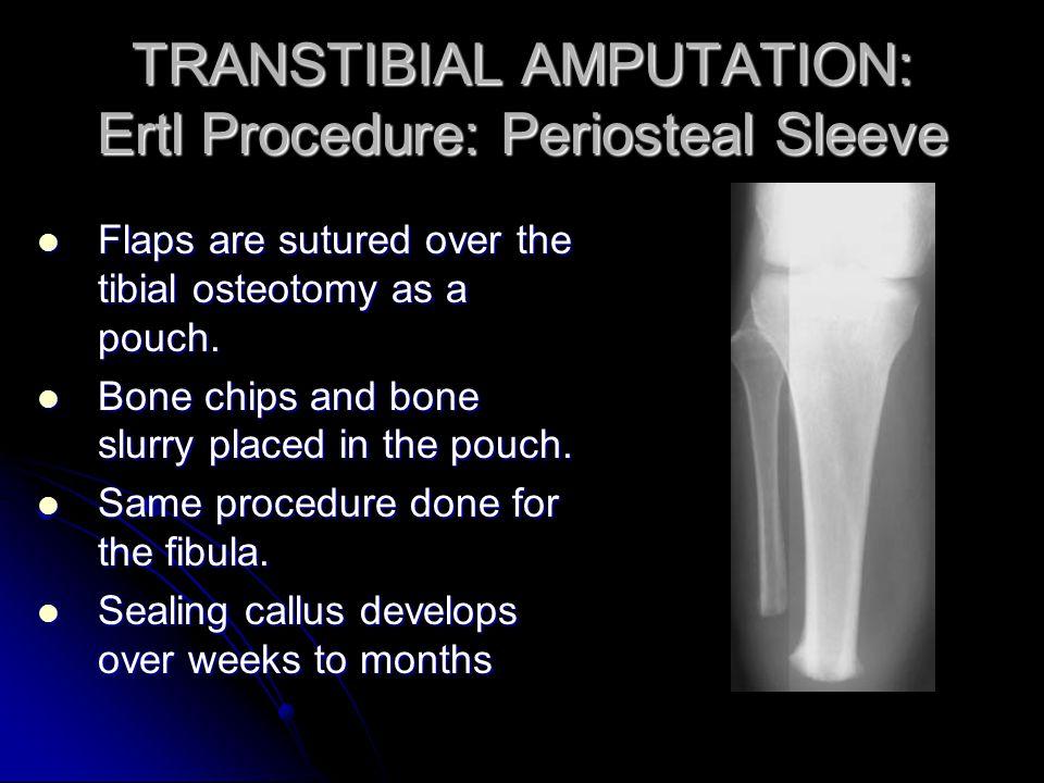 TRANSTIBIAL AMPUTATION: Ertl Procedure: Periosteal Sleeve