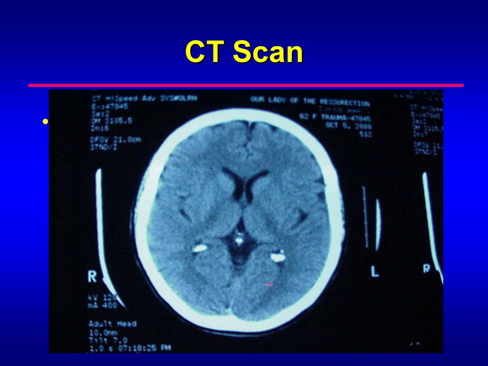 CT Scan Image….