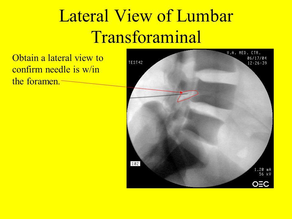 Lateral View of Lumbar Transforaminal