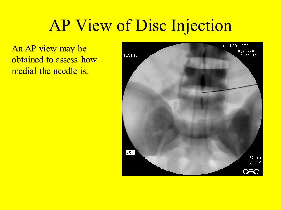 AP View of Disc Injection