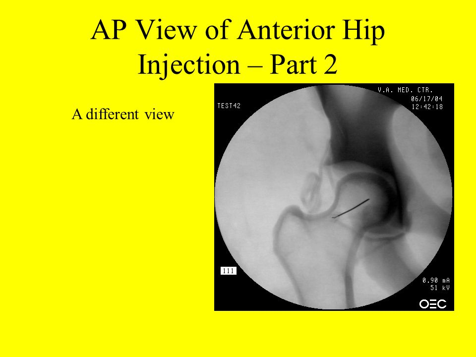 AP View of Anterior Hip Injection – Part 2
