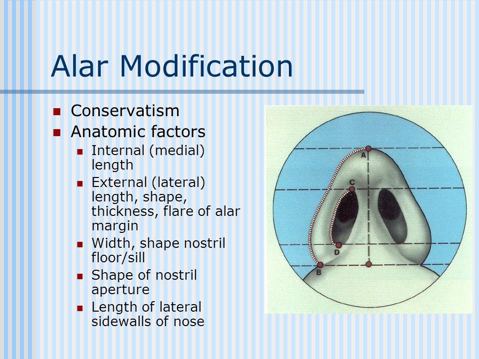 Alar Modification Conservatism Anatomic factors