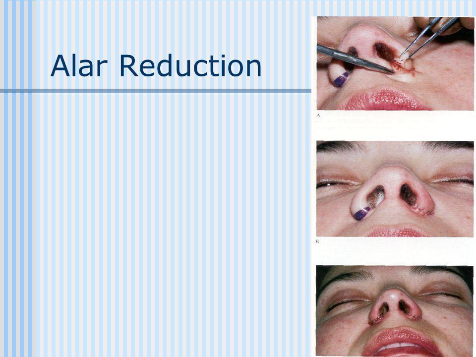 Alar Reduction