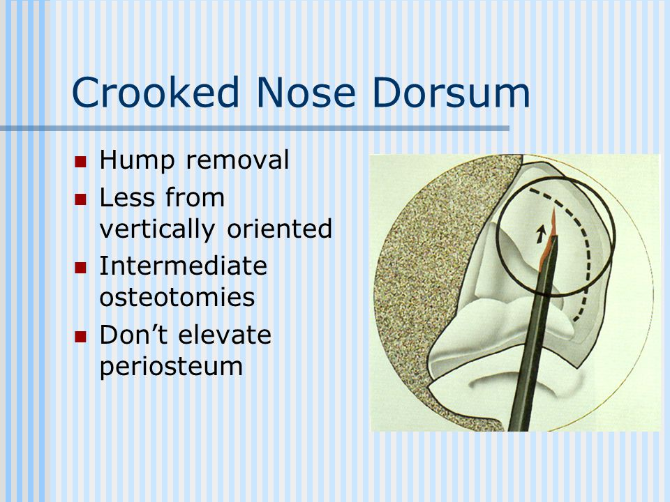 Crooked Nose Dorsum Hump removal Less from vertically oriented