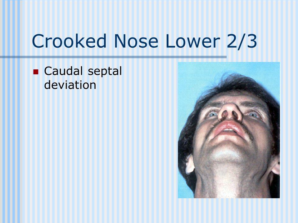 Crooked Nose Lower 2/3 Caudal septal deviation