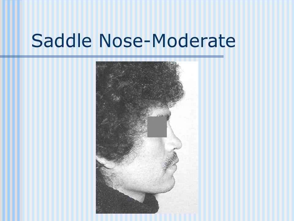 Saddle Nose-Moderate