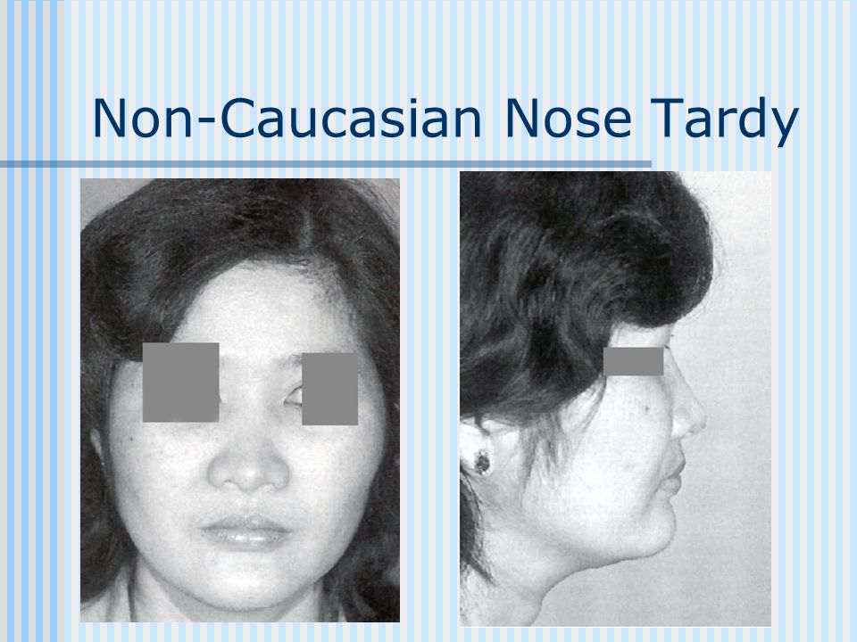 Non-Caucasian Nose Tardy