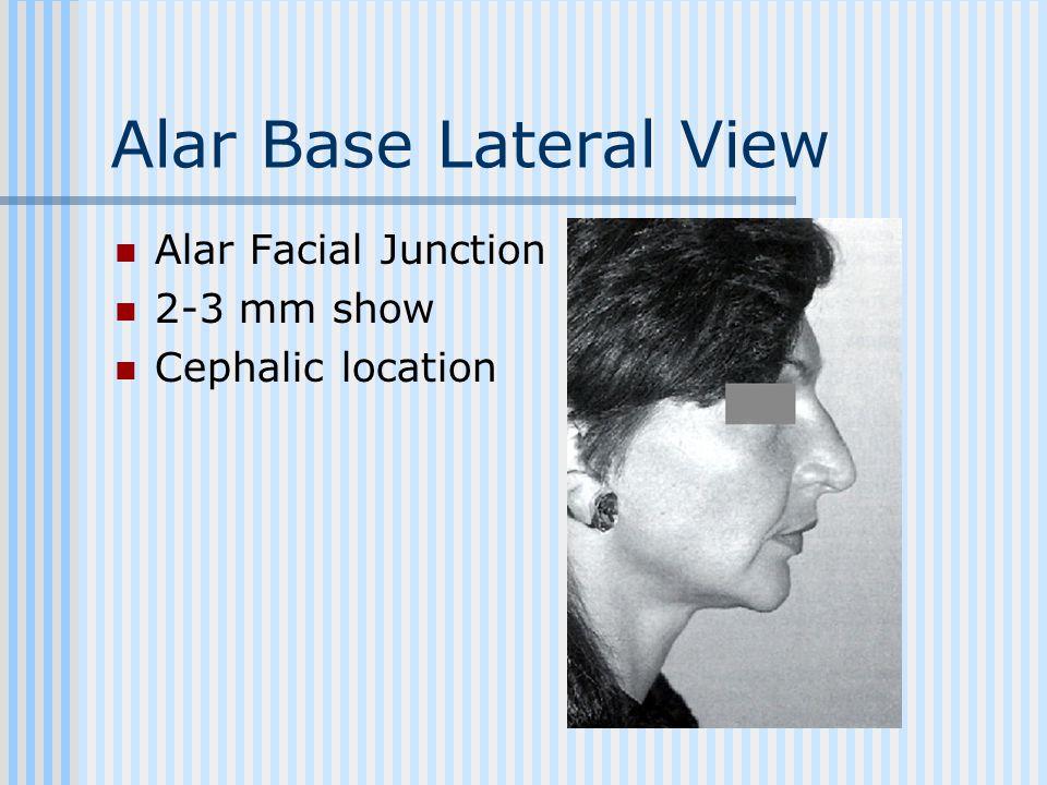 Alar Base Lateral View Alar Facial Junction 2-3 mm show