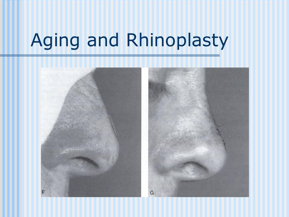 Aging and Rhinoplasty