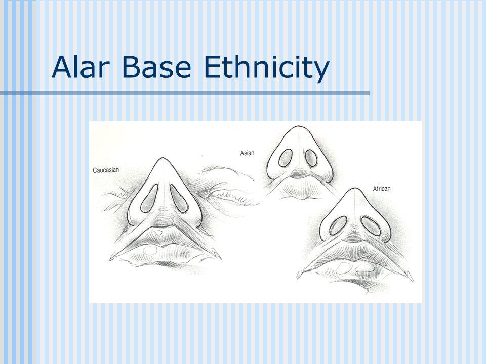 Alar Base Ethnicity