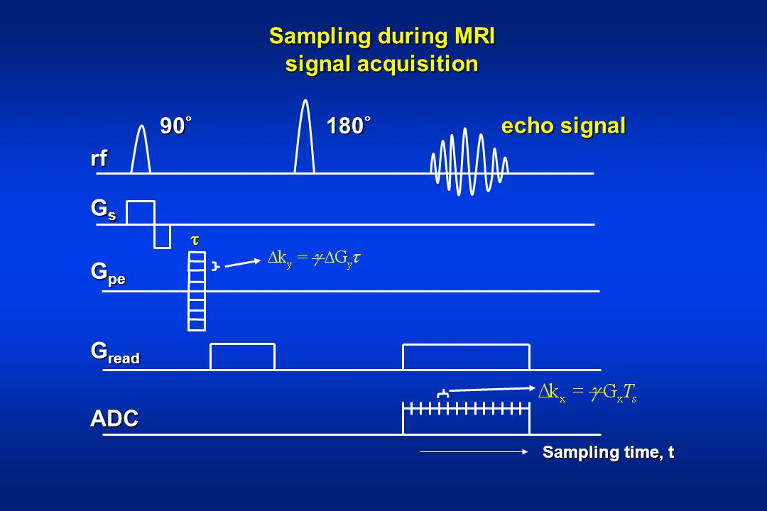 Sampling during MRI signal acquisition