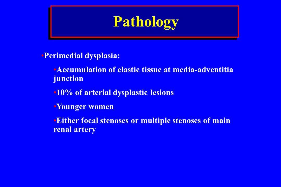 Pathology Perimedial dysplasia: