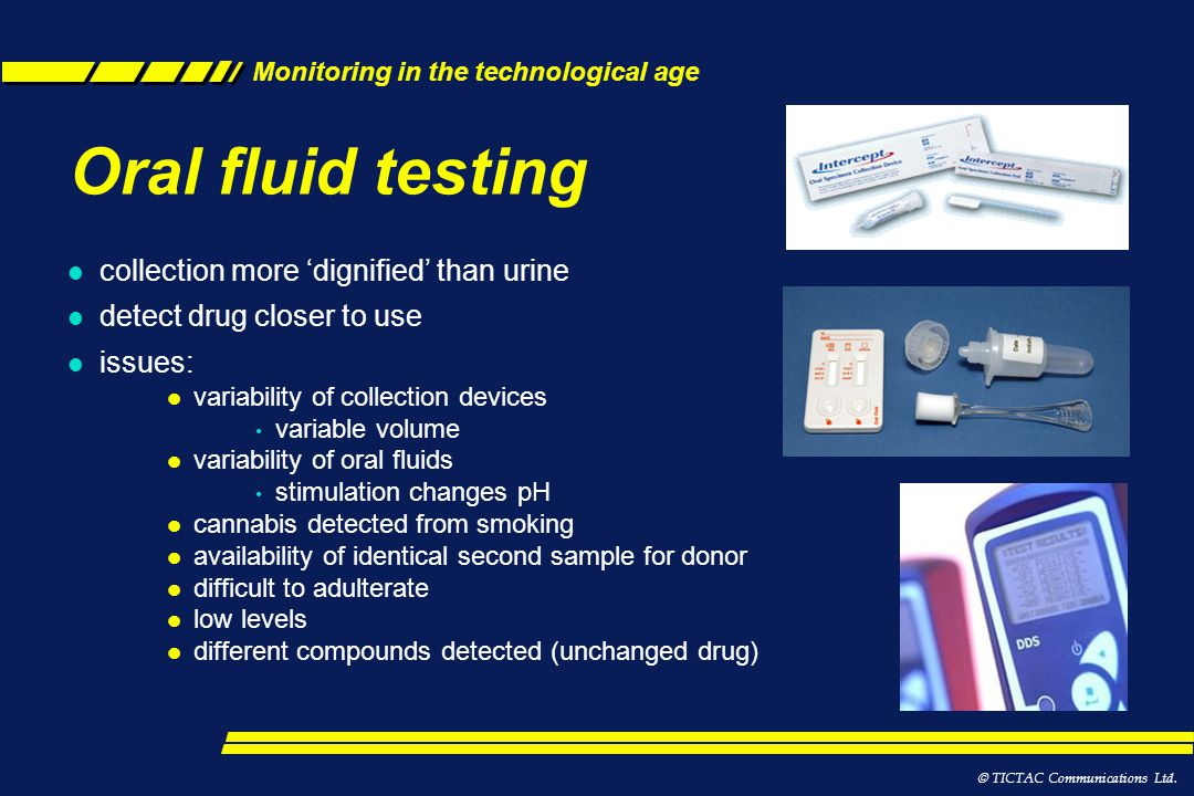 Oral fluid testing collection more 'dignified' than urine