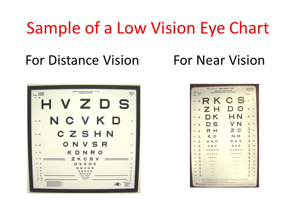 Sample of a Low Vision Eye Chart