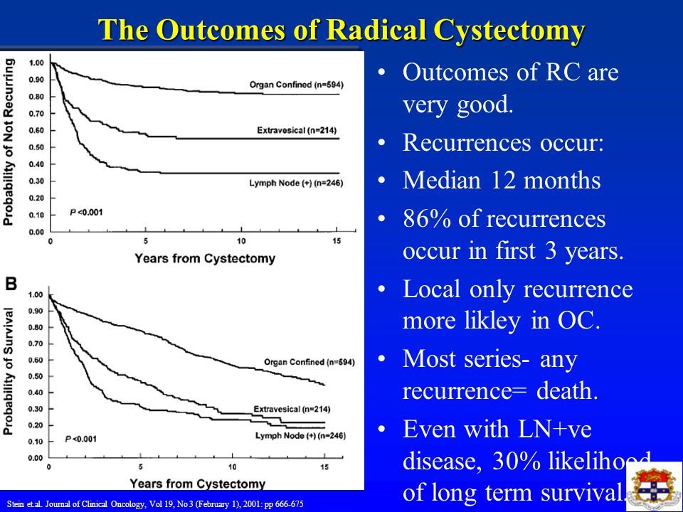 The Outcomes of Radical Cystectomy