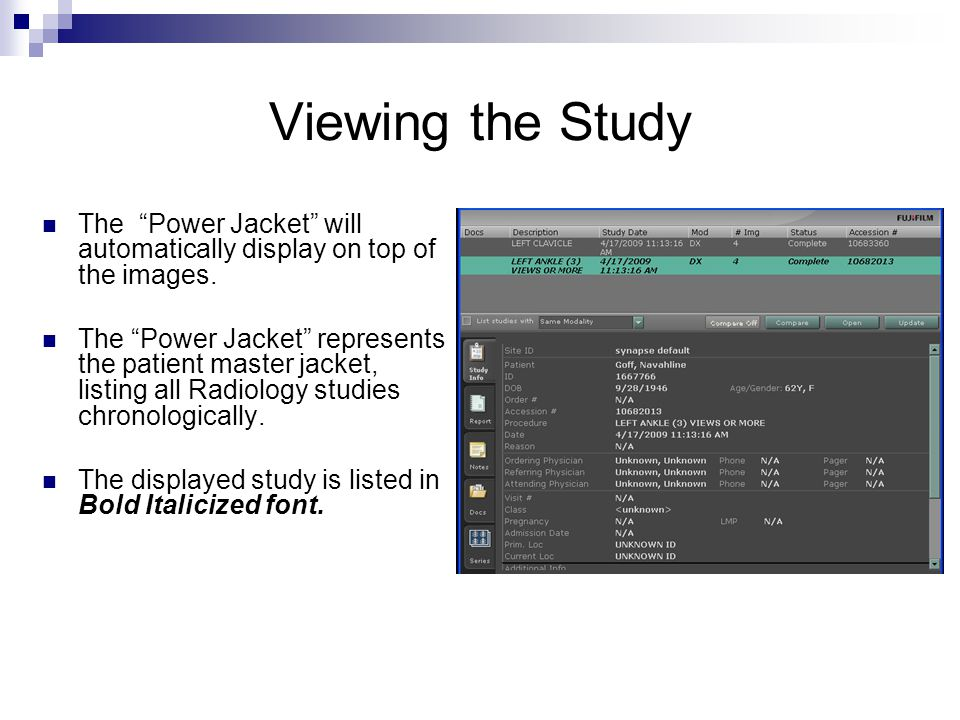 Viewing the Study The Power Jacket will automatically display on top of the images.
