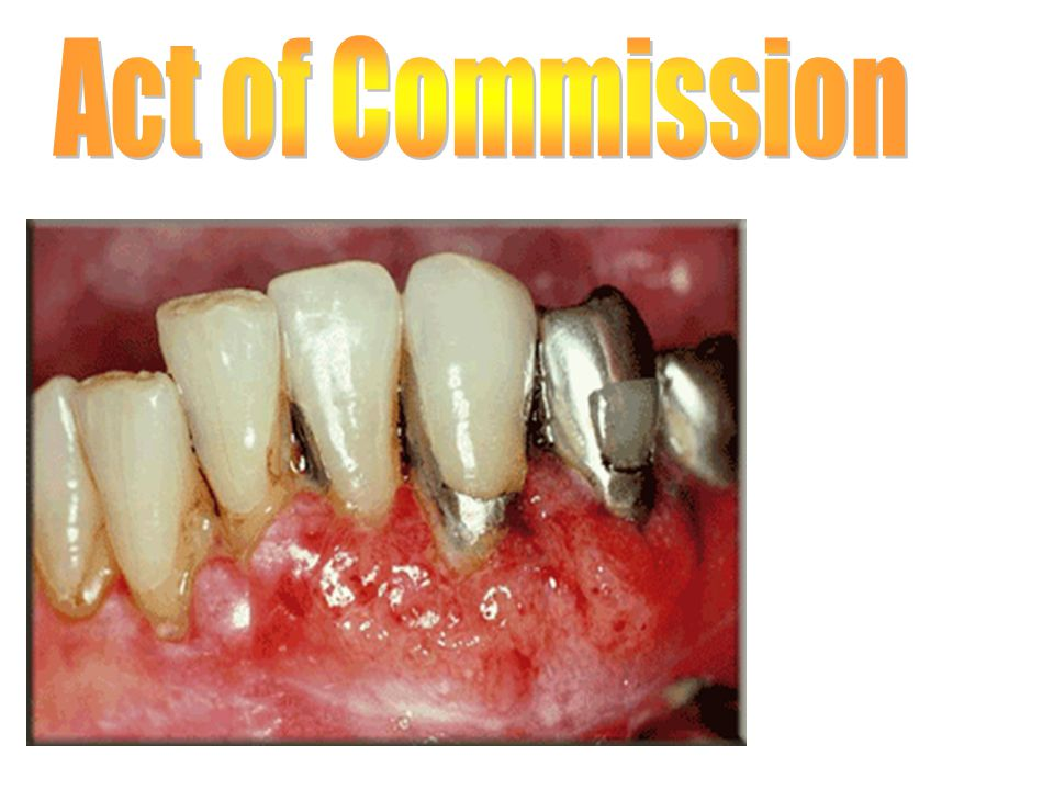Act of Commission