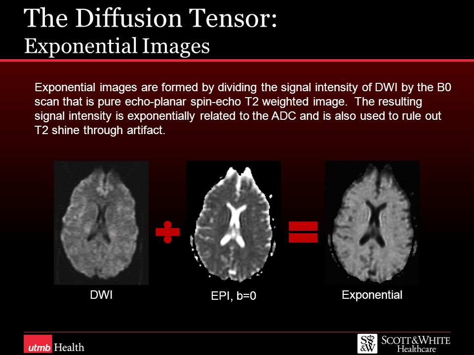 The Diffusion Tensor: Exponential Images