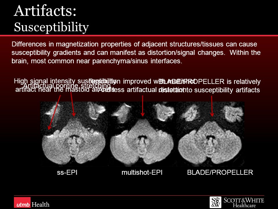 Artifacts: Susceptibility