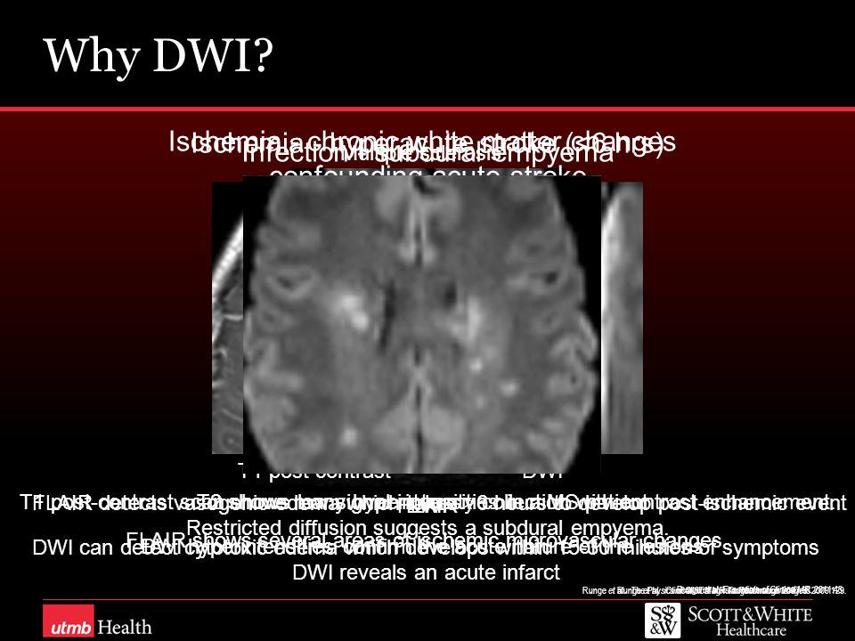 Why DWI Ischemia - chronic white matter changes