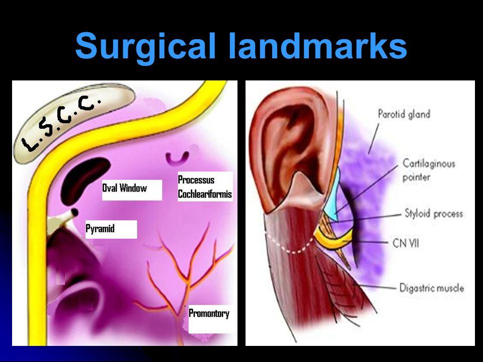 Facial Nerve Paralysis Ppt Video Online Download