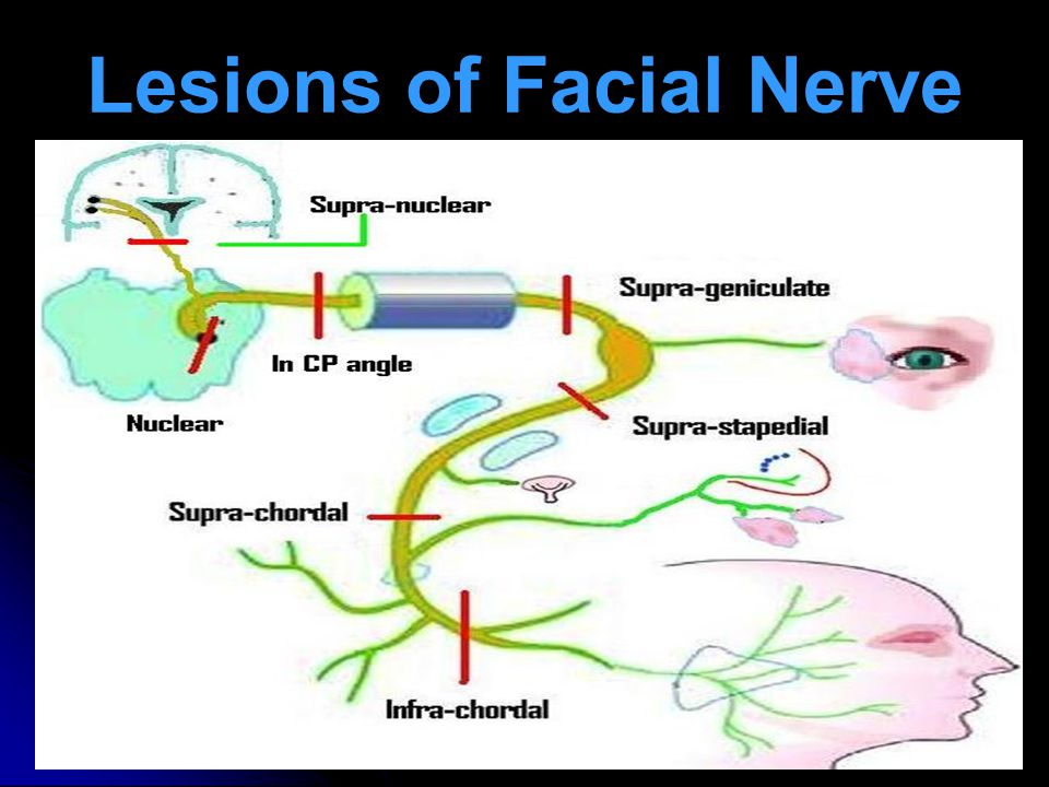 Lesions of Facial Nerve