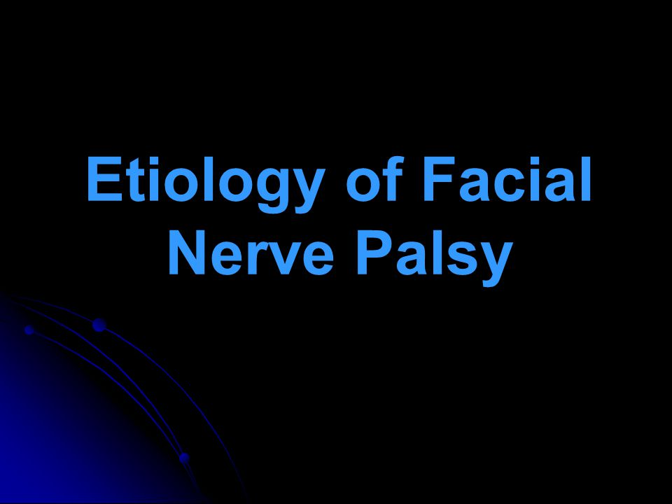 Etiology of Facial Nerve Palsy