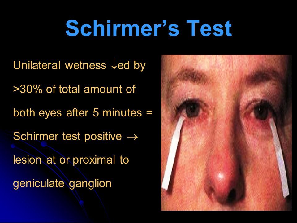 Schirmer's Test Unilateral wetness ed by >30% of total amount of