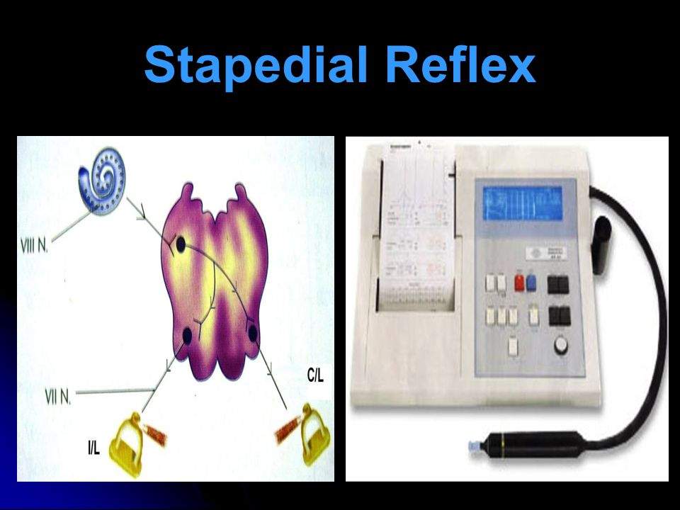 Stapedial Reflex