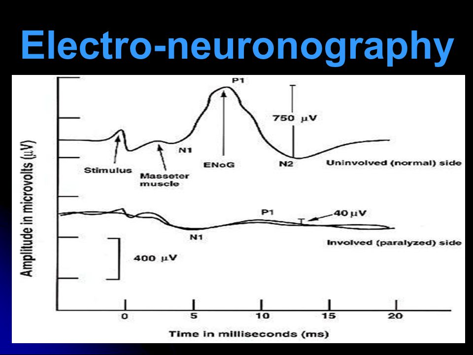 Electro-neuronography