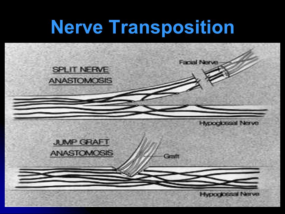 Nerve Transposition